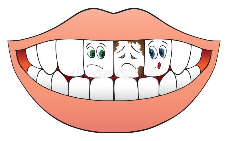 Dents nerveuses illustration de vecteur