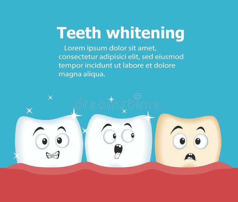 Dents professionnelles blanchissant l'illustration de vecteur illustration libre de droits