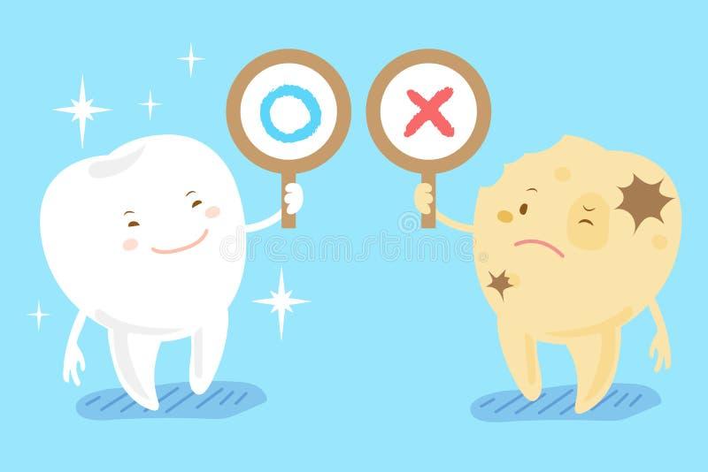 Dents saines et carie dentaire illustration stock