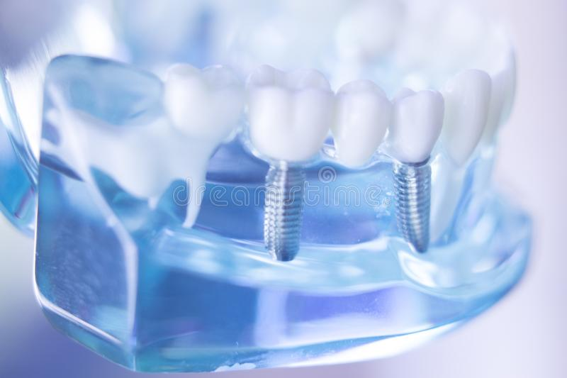 Dentsts牙齿牙植入管 免版税库存照片