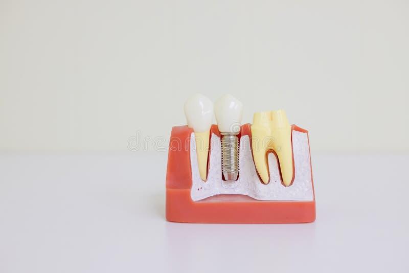 Dentsts stomatologiczni protetyczni zęby, dziąsła, korzenie uczy ucznia modela z titanium metal śruby wszczepem Zębu model obrazy royalty free