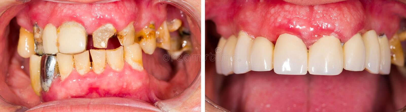 Denture перед и после обработкой стоковые изображения
