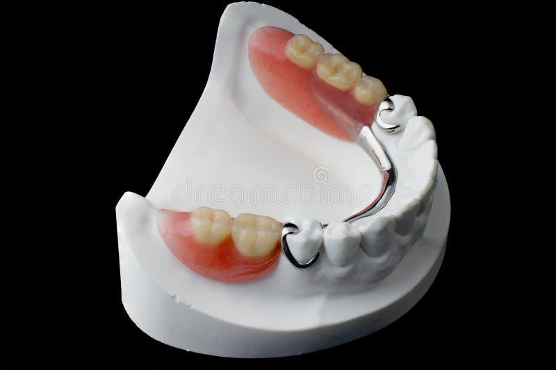 Denture royalty free stock image