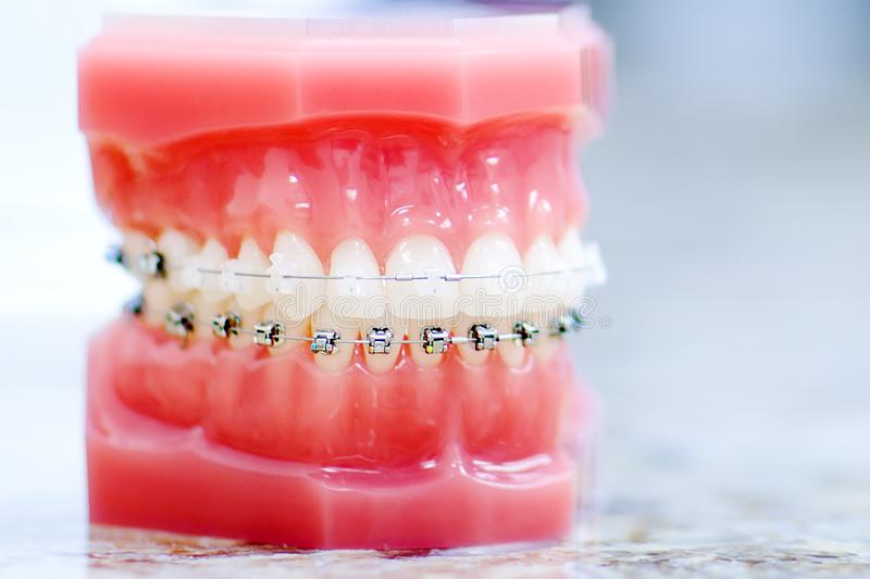 Denture picture with the best focus on teeth. Teeth with braces. royalty free stock image