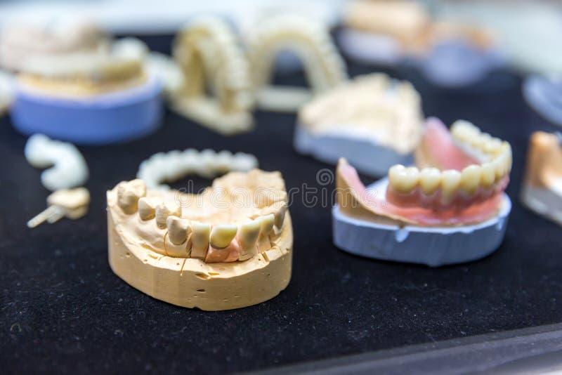 Denture, protetyczna dentystyka, stomatologiczni wszczepy obrazy stock