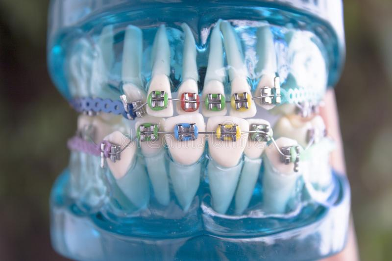 Classic dental metal orthodontics with colored hooks royalty free stock image