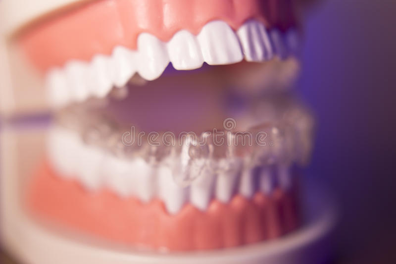 Denture with transparent orthodontics stock photo
