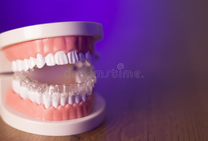 Denture with transparent orthodontics royalty free stock images