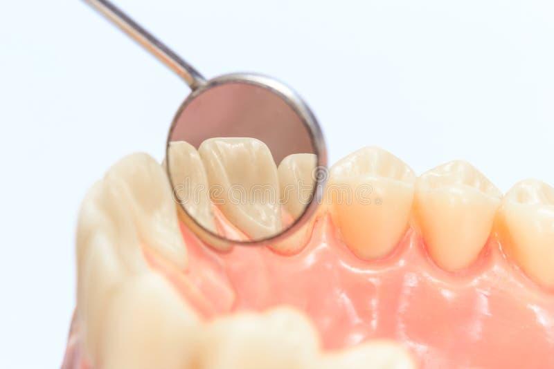 Dentures с зеркалом стоковая фотография rf