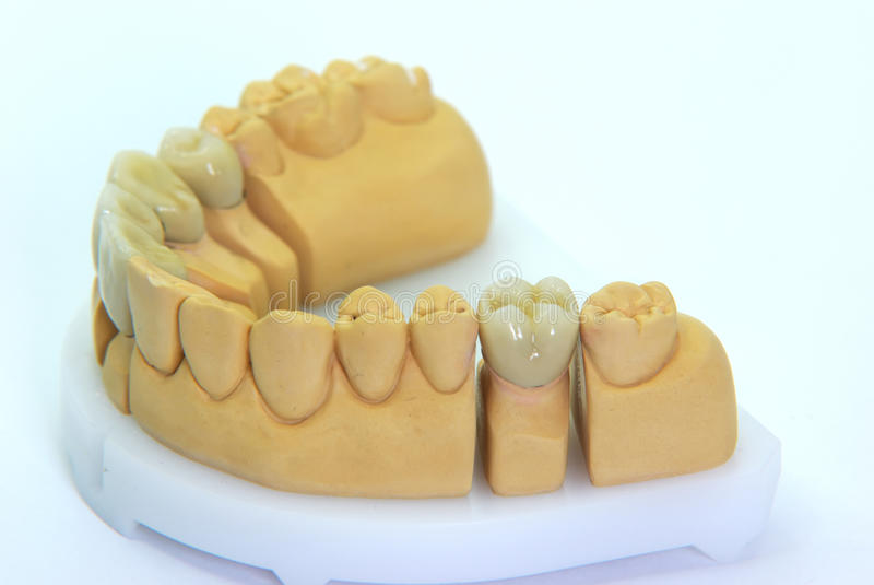 Dentures. With porcelain teeth isolated on white royalty free stock photos
