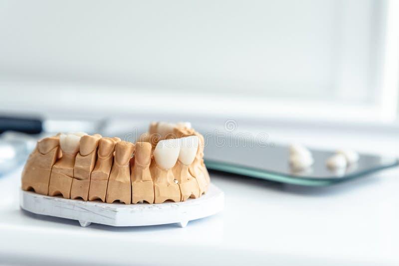Dentures, forniry, korony, wszczepy zrobią w stomatologicznym laboratorium obraz stock