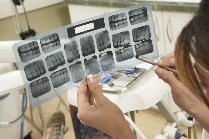 Dentysta Egzamininuje zębu promieniowanie rentgenowskie fotografia stock