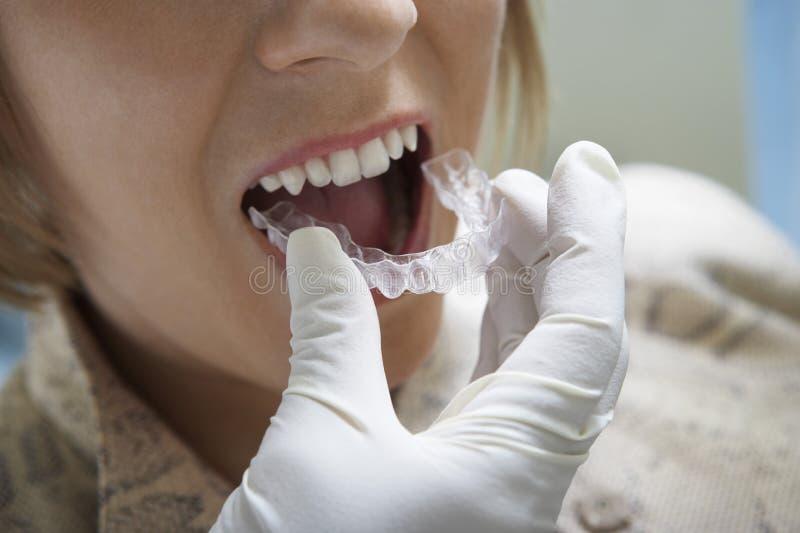 Dentysta Umieszcza brasy zdjęcie royalty free