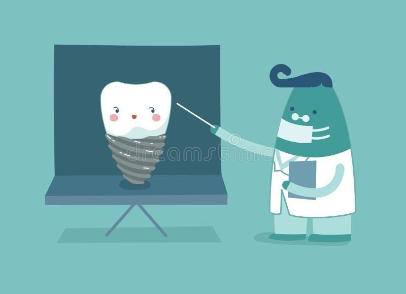 Dentysta wyjaśnia o wszczepie, zębach i zębu pojęciu stomatologiczny, royalty ilustracja