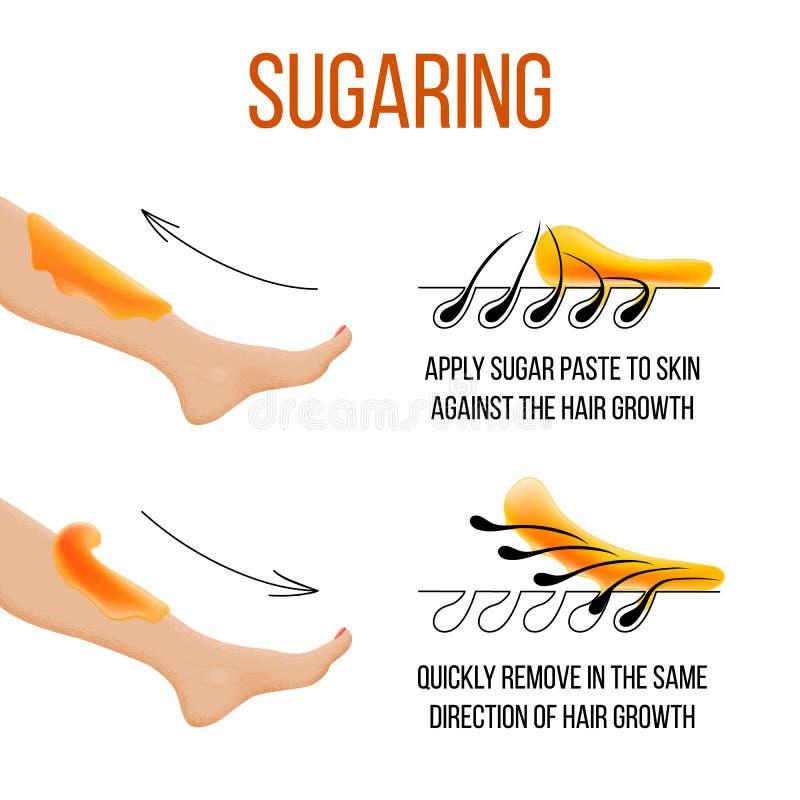 Depilacja i słodzenie Włosiany usunięcie follicle Kobiety noga z cukierem lub woskiem Before and after Proces i kroki ilustracja wektor