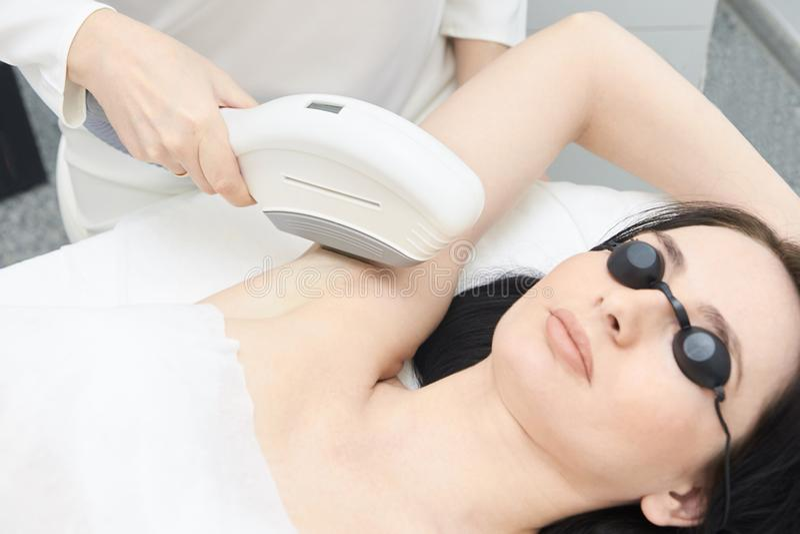Depilazione dell'ascella del laser di Elos Trattamento di Epilation nella clinica cosmetica di bellezza fotografie stock libere da diritti
