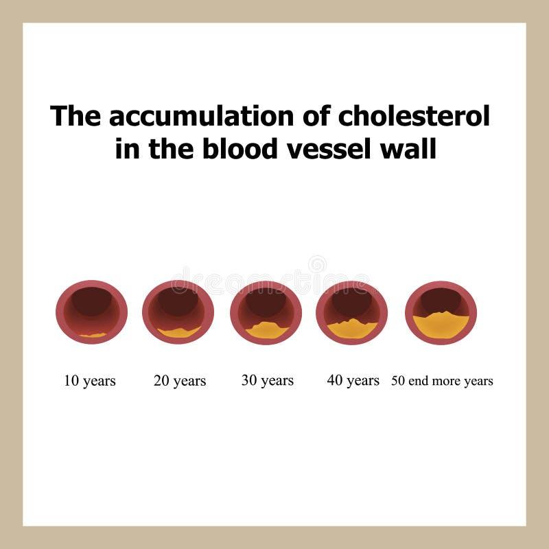 Deposito van cholesterol in functie van leeftijd vector illustratie
