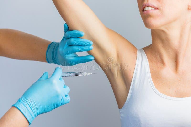 Der Arzt, der die intramuskuläre Injektion mit einer Spritze mit Botulinumtoxin unter Arm gegen Körperschweiß stockfotografie