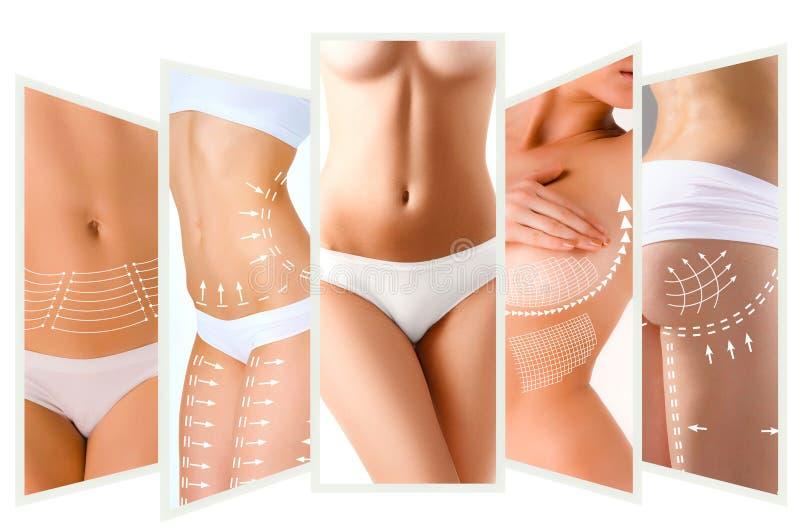 Der Celluliteabbauplan Weiße Markierungen auf Körper der jungen Frau lizenzfreies stockfoto