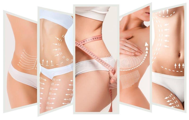 Der Celluliteabbauplan Weiße Markierungen auf Körper der jungen Frau stockfotos
