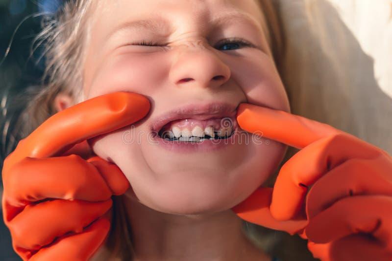 Der Doktor versucht, den Mund eines kleinen M?dchens mit einem orthodontischen Ger?t und gekr?mmten Z?hnen zu sehen stockfoto