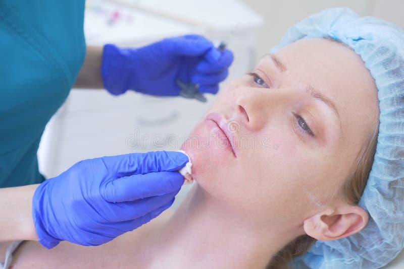 Der Doktorkosmetiker macht Einspritzungen angesichts des weiblichen Patienten Schönheitsbegriff und Cosmetology 4K lizenzfreies stockbild