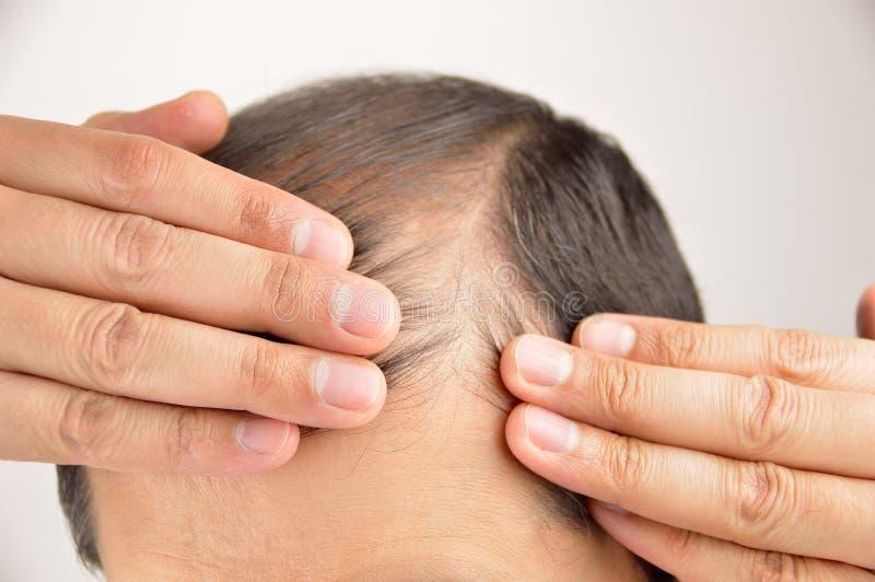 Der Haarausfall lizenzfreies stockbild