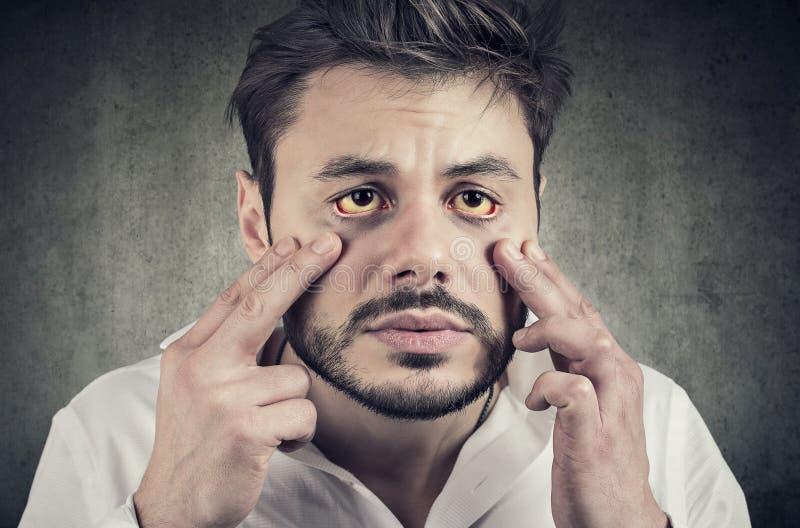 Der kranke Mann, der in einem Spiegel schaut, hat gelbliche Augen als Zeichen der möglichen Leberinfektion oder anderer Krankheit lizenzfreies stockbild
