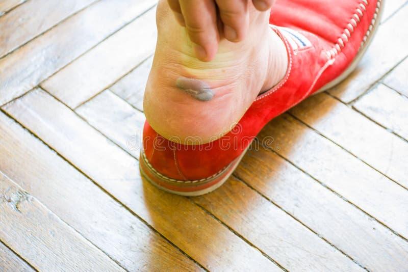 Der Mann erreicht heraus zu große Schwielen oder Blase mit Flüssigkeit zu Fuß nahe der Ferse, nachdem er die Schuhe entfernt hat  stockbild