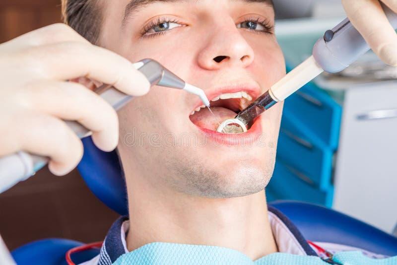 Der Prozess der zahnmedizinischen Behandlung stockbilder