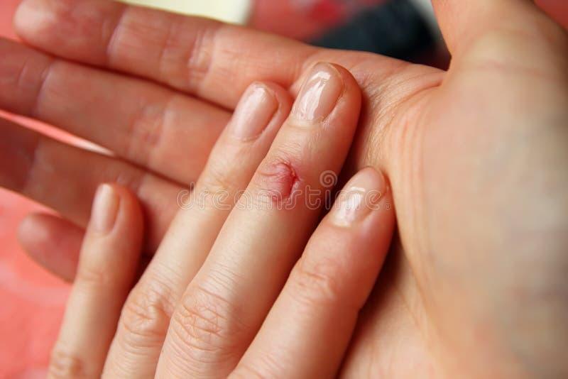 Der Schnitt auf seinem Finger lizenzfreie stockfotografie
