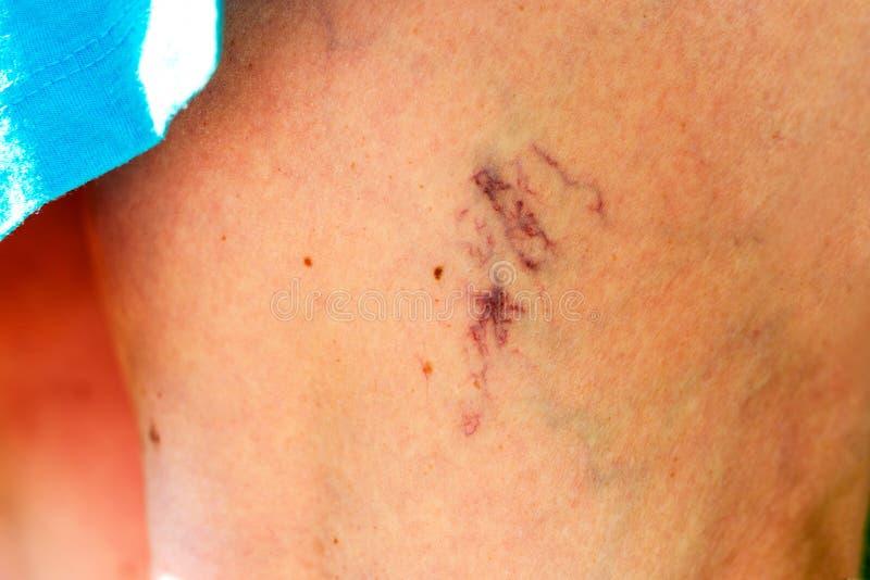 Derma colpito dalle vene varicose sulle gambe immagine stock libera da diritti