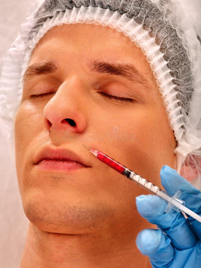 Dermal utfyllnadsgods av mannen i brunnsortsalong med kosmetologen royaltyfri fotografi
