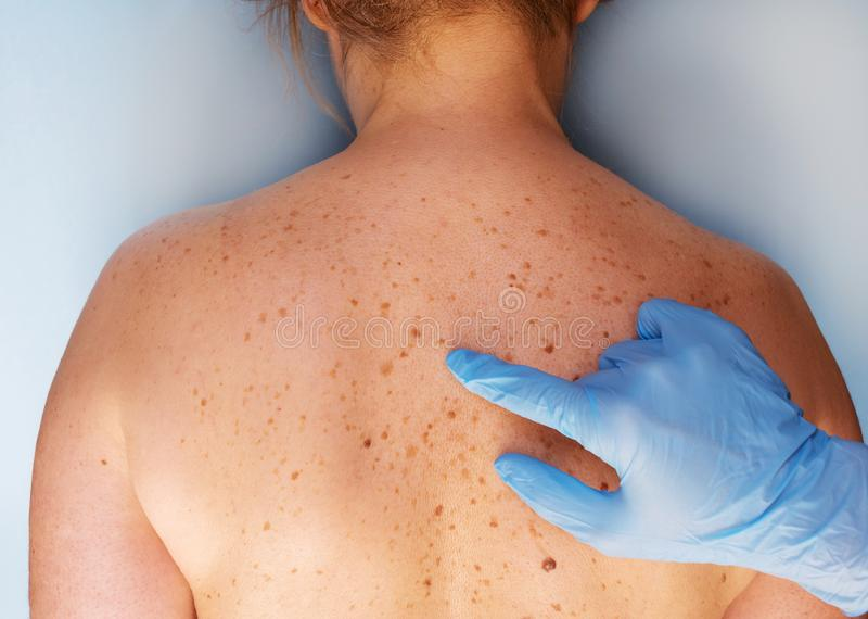 Dermatólogo que examina al paciente en la clínica Piel del problema con un topo en la parte posterior Opinión del primer foto de archivo libre de regalías