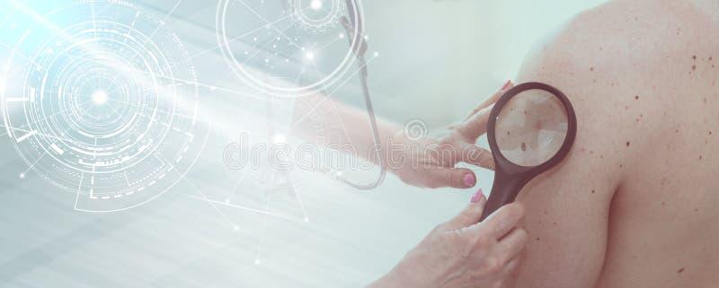 Dermatólogo que examina la piel de un paciente; exposición múltiple imagen de archivo