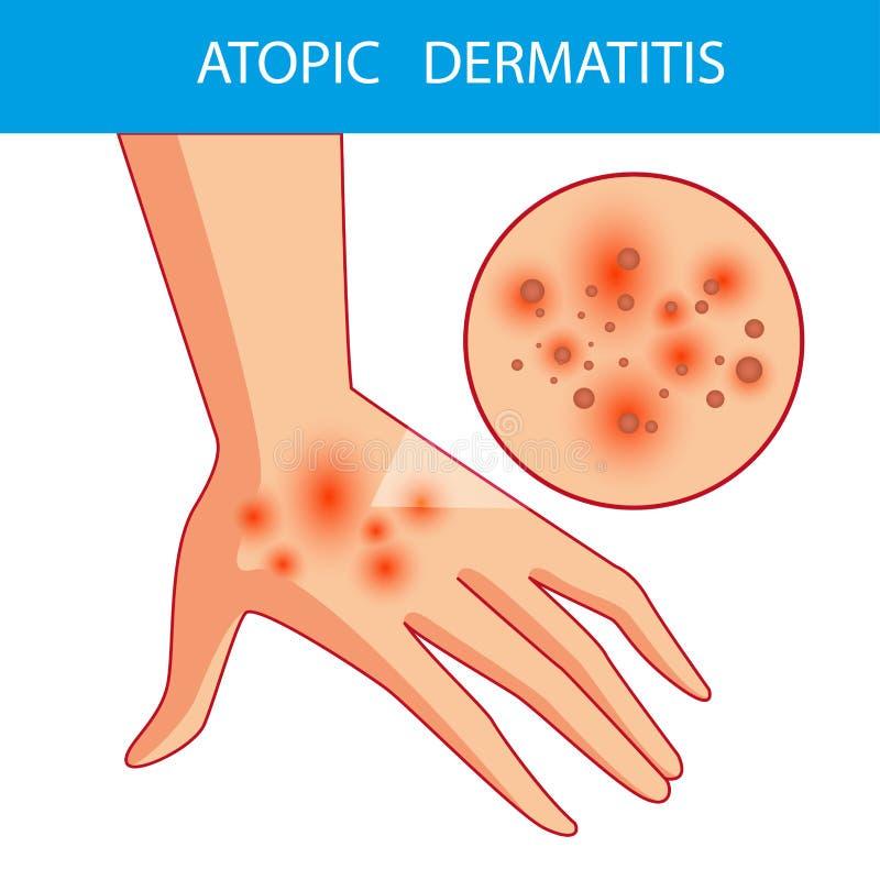 Dermatis atopici La persona graffia il braccio su cui è la dermatite atopica itching fotografia stock libera da diritti