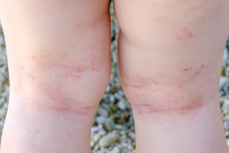 Dermatit för den nyfödda closeupen för hudretning lägger benen på ryggen atopic skrapor royaltyfri foto