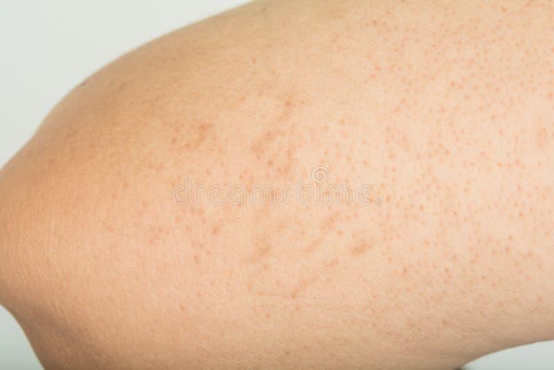 Dermatit och onormalt royaltyfria foton