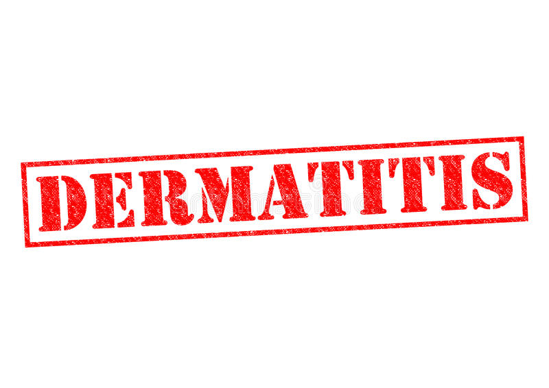 dermatite imagem de stock