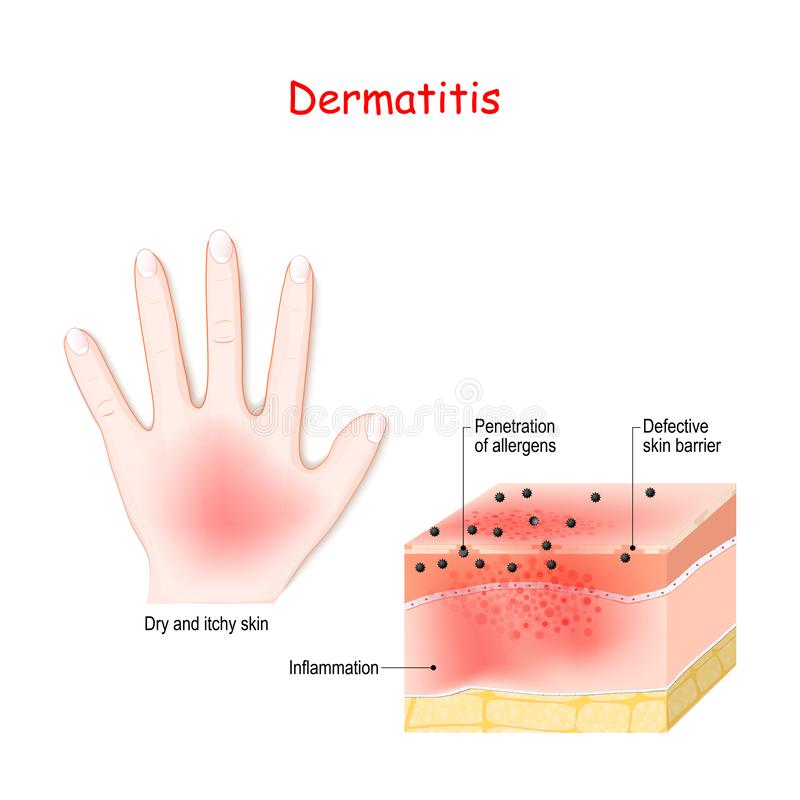 Dermatitis. Atopic eczema. Close-up of  Cross-section of human skin with dermatitis royalty free illustration