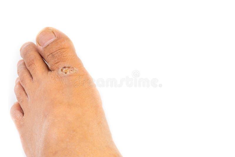 Dermatitis, chory alergiczny nierozważny dermatitis lub egzemy skóra na nogach, zdjęcie royalty free