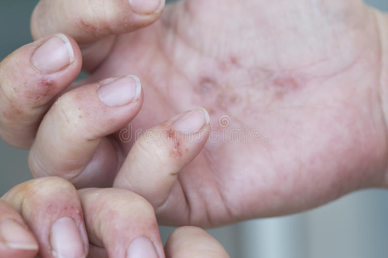 Dermatitis in handen stock foto