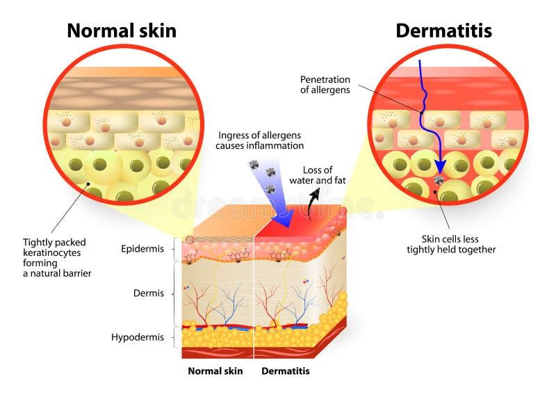 Dermatitis o eczema stock de ilustración