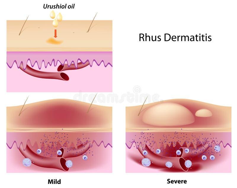 Dermatitis rhus. Urushiol oil induced contact dermatitis, eps8 royalty free illustration