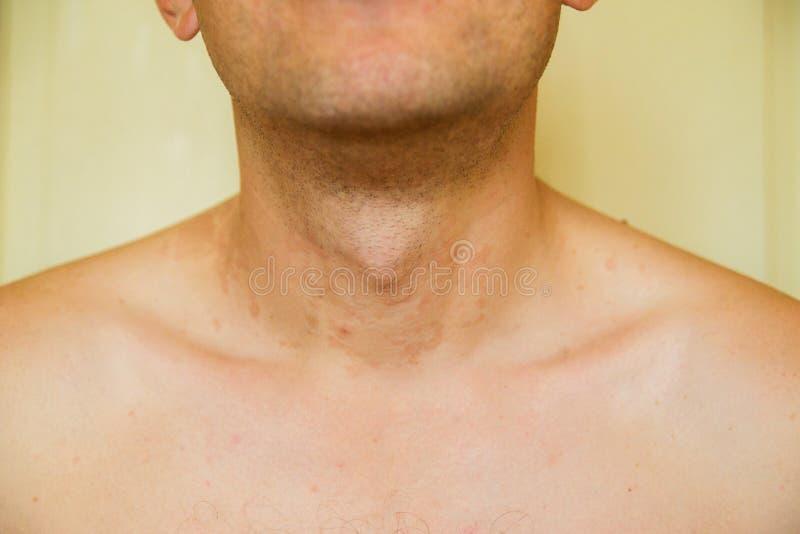 dermatitis skóra zdjęcia royalty free
