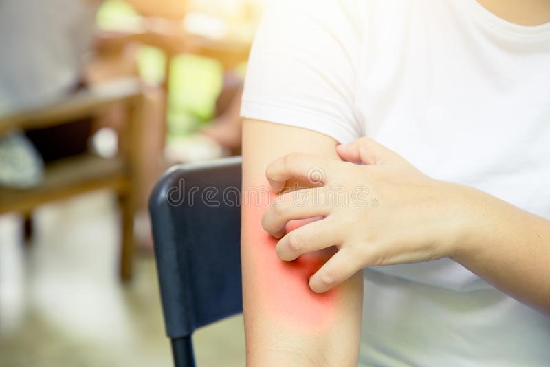 Dermatitis skin allergy: women hand itching scratching red skin. Dermatitis skin allergy: women hand itching scratching red arm skin stock photo