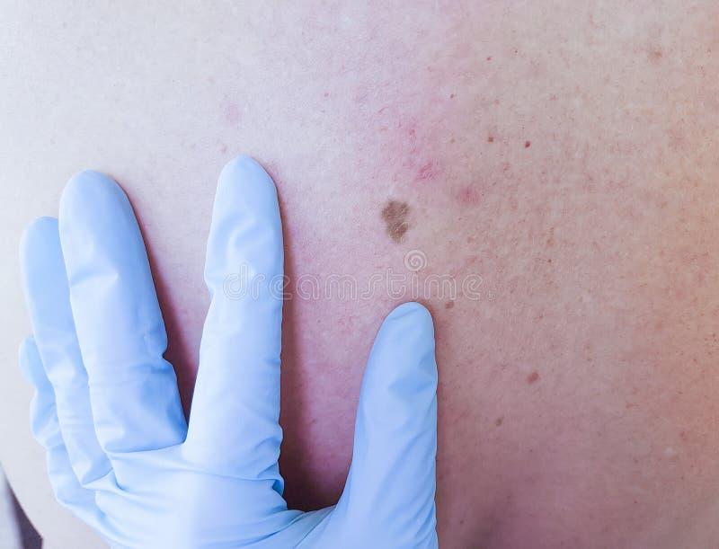Dermatolog egzamininuje cierpliwej ` s gramocząsteczki na plecy zdjęcie stock