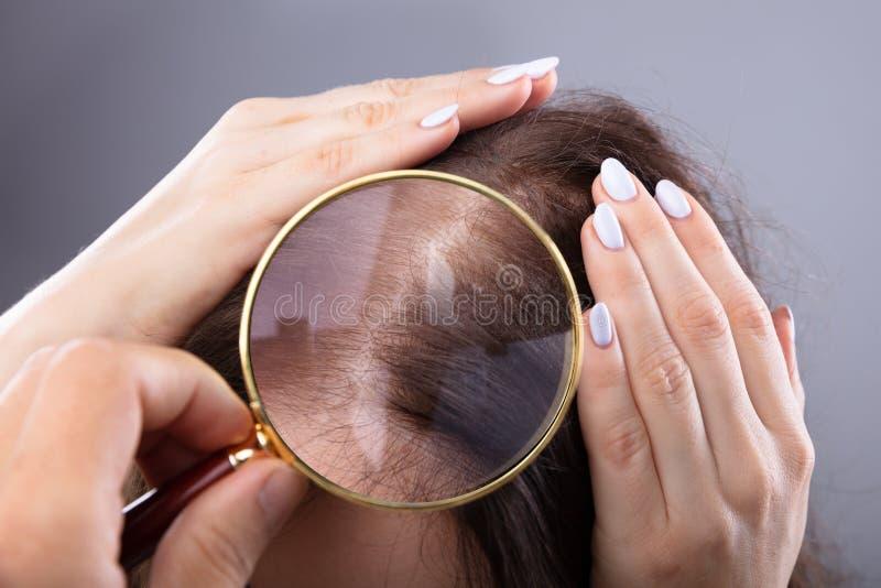 Dermatolog Egzamininuje kobieta w?osy zdjęcie stock