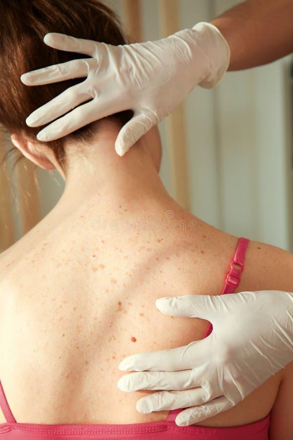 Dermatolog egzamininuje pacjenta obraz royalty free