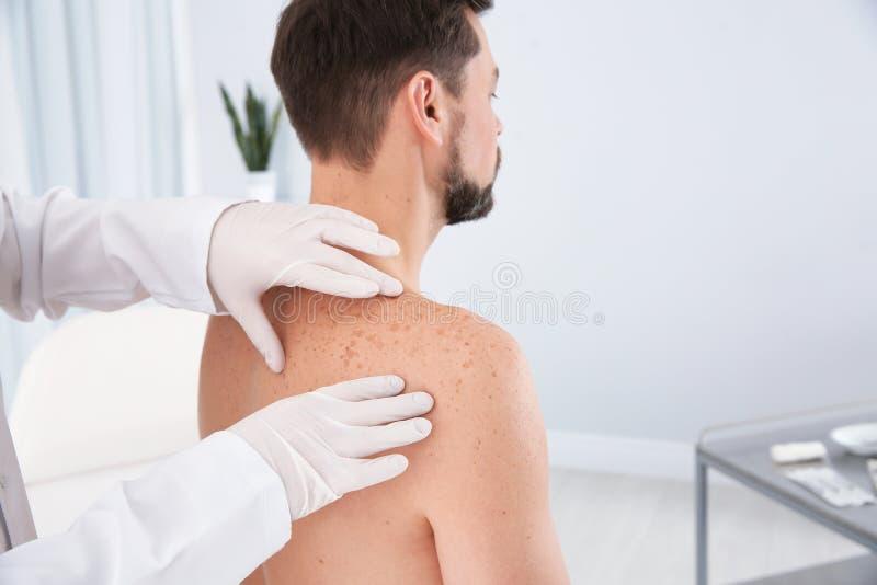 Dermatolog egzamininuje pacjenta birthmark obraz royalty free